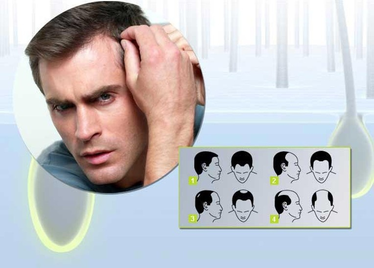 Средство для роста волос careprost