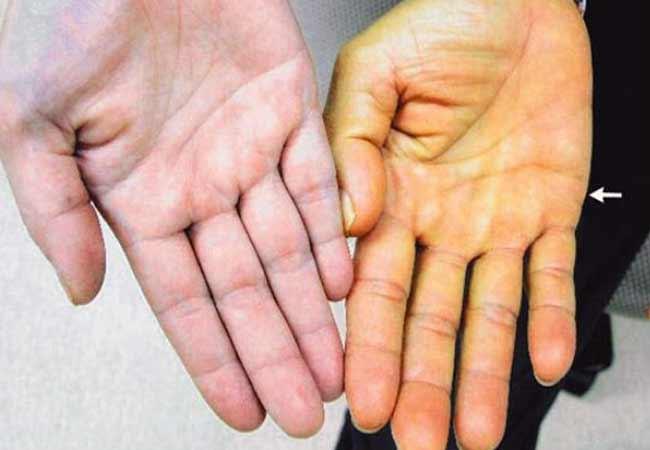 Лечение ребенка от гепатита с софосбувир